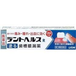 効く 薬 の 腫れ 市販 に 歯茎