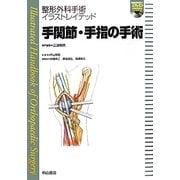 手関節・手指の手術(整形外科手術イラストレイテッド) [全集叢書]