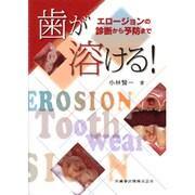 歯が溶ける!―エロージョンの診断から予防まで [単行本]
