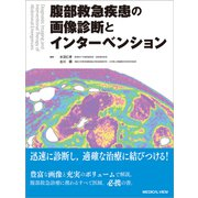 腹部救急疾患の画像診断とインターベンション [単行本]
