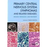 Primary central nervous system-BIOLOGY、PATHOLOGY、AND TREATMENT [単行本]