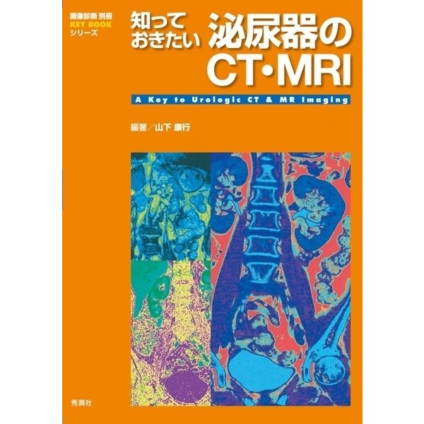 知っておきたい泌尿器のCT・MRI(学研) [電子書籍]
