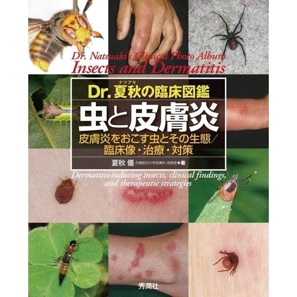Dr.夏秋の臨床図鑑 虫と皮膚炎(学研) [電子書籍]