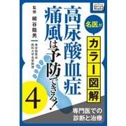 名医がカラー図解! 高尿酸血症・痛風は予防できる! (4) 専門医での診断と治療(インプレス) [電子書籍]